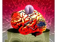Cerebral explotion | Javier Martinez | Tinta[A]Diario